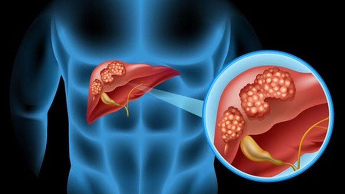 Obat Herbal Kanker Hati Tanpa Operasi | Walatra Zedoril-7 ...
