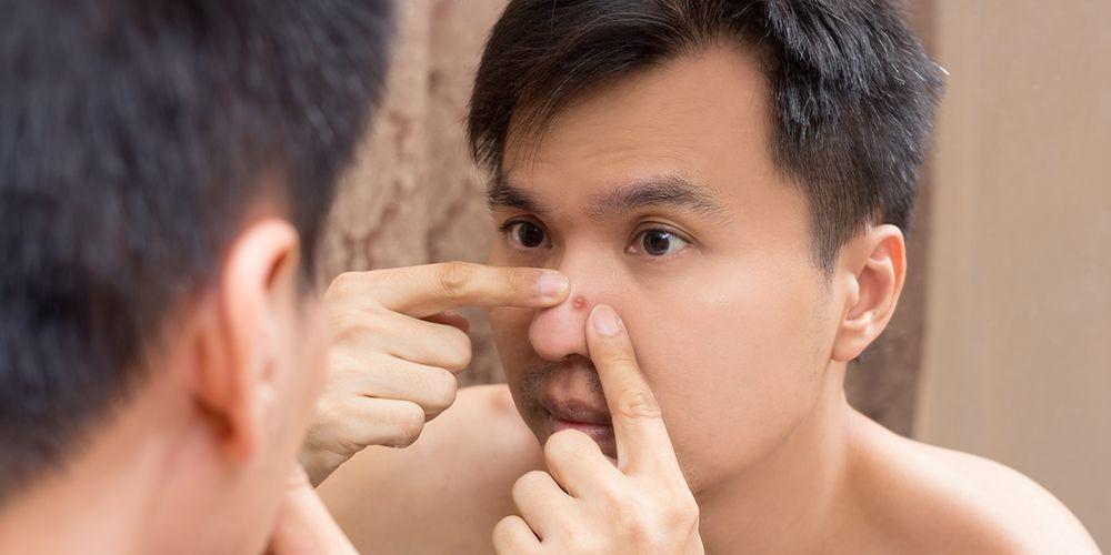 Obat Alami Untuk Benjolan di hidung // Qnc Jelly Gamat ...
